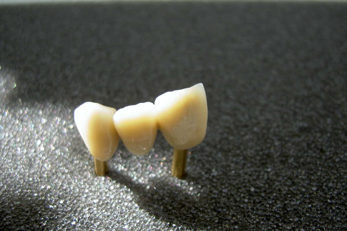 Zahnersatz (festsitzend)